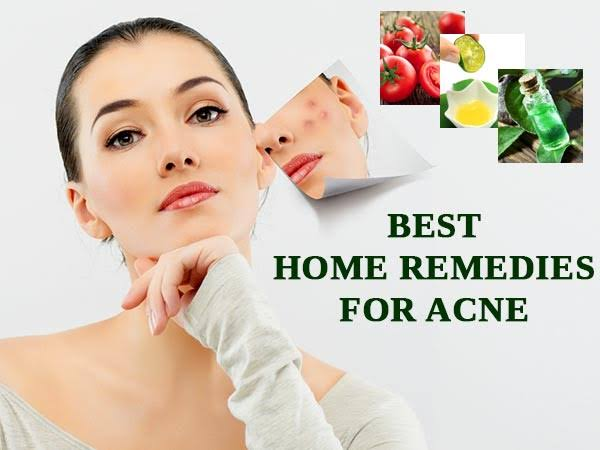 Best Natural Remedies For Acne That Actually Work